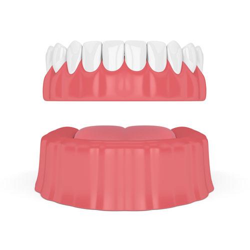 Full Removable Denture
